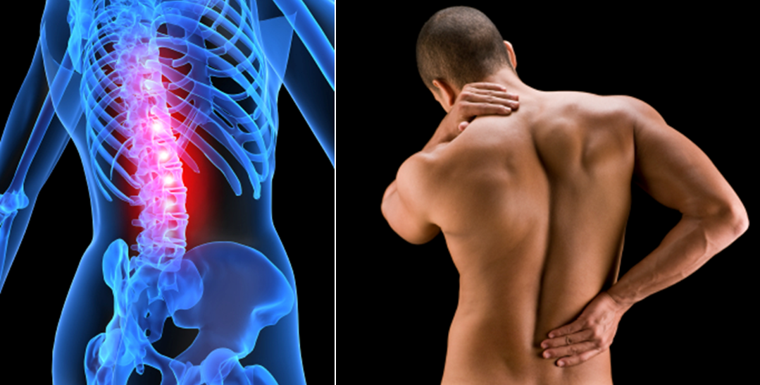 Back Pain & Sciatica Treatment Made Easier.